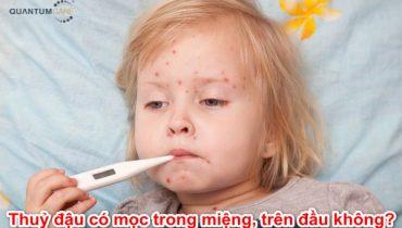 Thuỷ đậu có mọc quá nhiều trong miệng, trên đầu, mặt có nguy hiểm không?