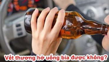 Vết thương hở có được uống bia không? Nên kiêng uống gì?
