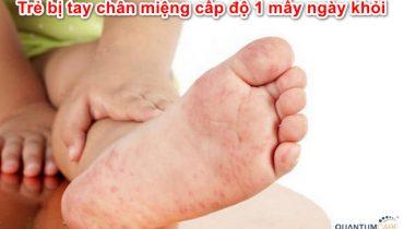 Trẻ bị tay chân miệng cấp độ 1 mấy ngày thì khỏi, cách chăm sóc