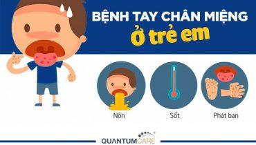 Trẻ bị tay chân miệng sốt mấy ngày?