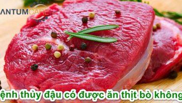 Bệnh thủy đậu có ăn được thịt bò không? Kiêng gì, Ăn gì?
