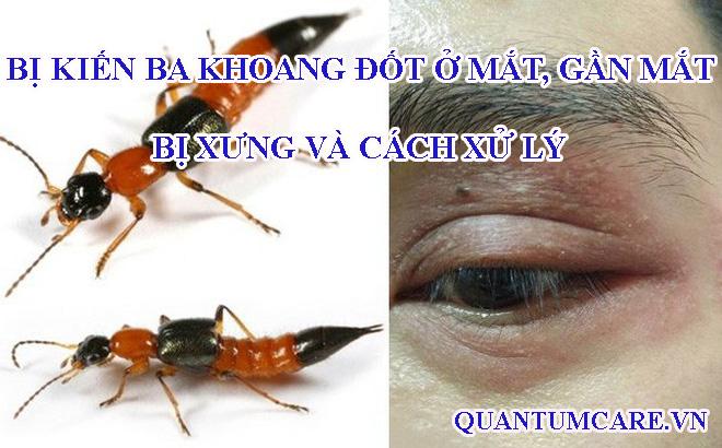 Bị kiến ba khoang đốt ở mắt, gần mắt, bị xưng và cách xử lý