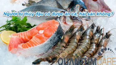 Người bị thủy đậu có được ăn cá không, hải sản không?
