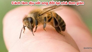 Bị ong đốt nên bôi thuốc gì cho nhanh khỏi?