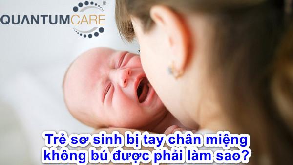 Trẻ sơ sinh bị tay chân miệng không bú, không ăn được phải làm sao
