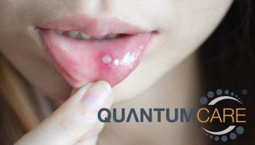 Bị nhiệt miệng nhiều liên tục có ảnh hưởng gì không?
