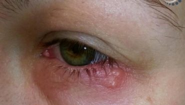 Bị Giời Leo ở Mắt: Nguyên nhân, dấu hiệu và cách chữa trị