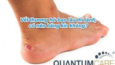 Vết thương hở bao lâu thì lành, có nên băng kín không?