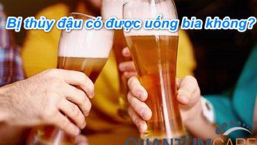 Bị thủy đậu có được uống bia không? Kiêng ăn uống gì?