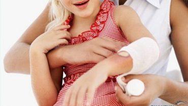 Top 9 thuốc trị bỏng nước sôi tốt nhất không để lại sẹo