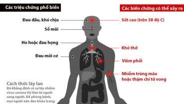 Virus Corona Vũ Hán là gì? Cách ngăn ngừa và điều trị
