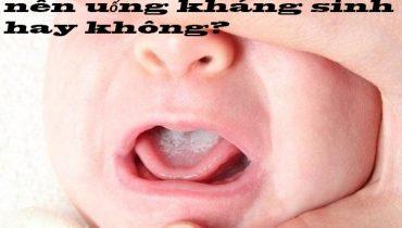 Trẻ bị nhiệt miệng có nên uống kháng sinh? Nên uống thuốc gì mau hết?