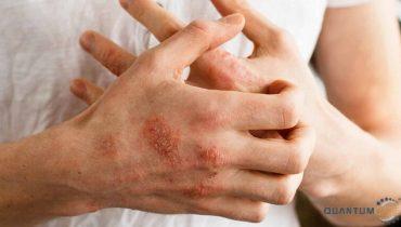 Top 9 thuốc chữa trị bệnh viêm da cơ địa hiệu quả nhất