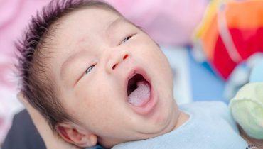 Cách chữa trị bệnh đẹn lưỡi ở trẻ sơ sinh tại nhà