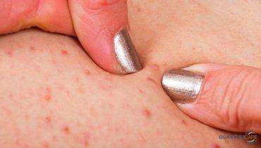 Top 9 thuốc bôi chữa trị viêm nang lông ở lưng, chân, mặt, vùng kín