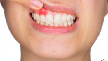 Chân răng sưng có mủ, nổi cục cục trắng thì uống thuốc gì?